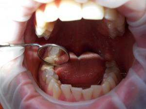 dentysta olsztyn/zabiegi//Ząb z opatrunkiem po leczeniu kanałowym/rtg