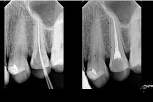 dentysta olsztyn/odbudowa zębów/rtg