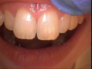 leczenie białych plam na zębach olsztyn