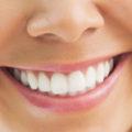 wybielanie</br> zębów