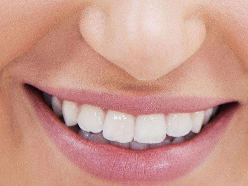 bielszy uśmiech