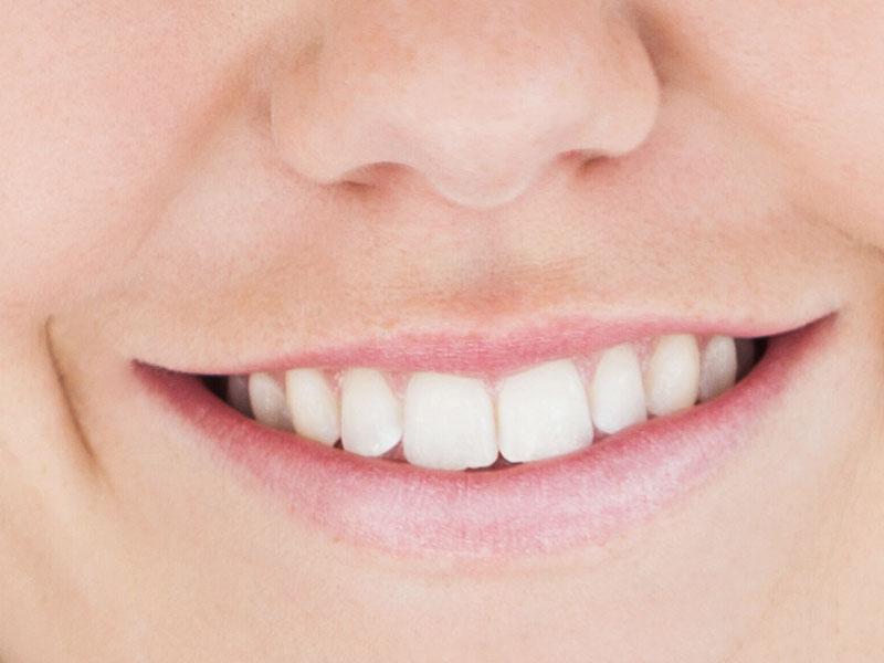 biały uśmiech olsztyn