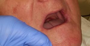 protezy zębowe olsztyn