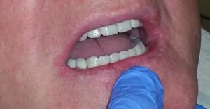 proteza zębowa olsztyn