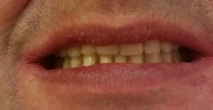 protezy zębowe na koronach teleskopowych olsztyn