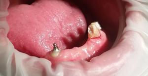 protezy zębowe, korony porcelanowe olsztyn
