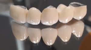mosty zębowe olsztyn dentysta