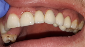 dobry protetyk dentysta olsztyn