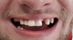 mosty zębowe olsztyn